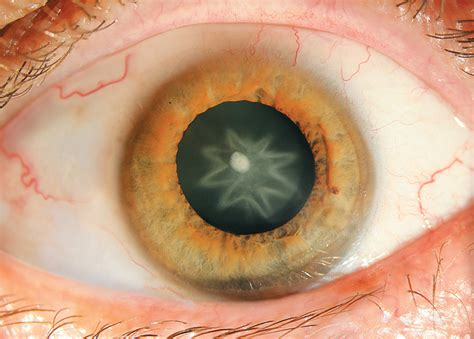 Cataracts: Symptoms and Treatment